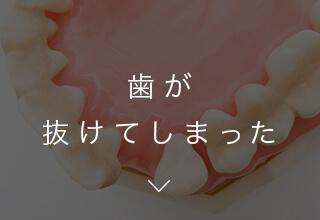 歯が抜けてしまった